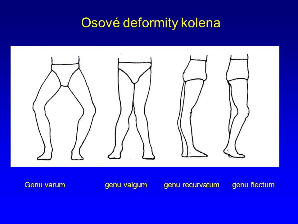Osové deformity kolena Genu varum genu valgum genu recurvatum genu flectum