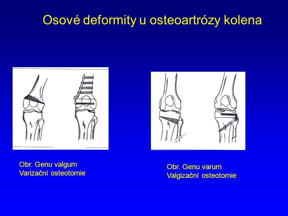 Osové deformity u osteoartrózy kolena Obr. Genu valgum Varizační osteotomie Obr. Genu varum Valgizační osteotomie