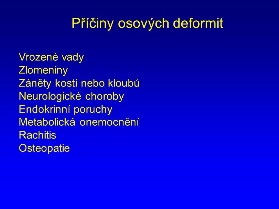Příčiny osových deformit Vrozené vady Zlomeniny Záněty kostí nebo kloubů Neurologické choroby Endokrinní poruchy Metabolická onemocnění Rachitis Osteo