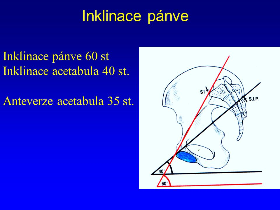 Inklinace pánve Inklinace pánve 60 st Inklinace acetabula 40 st. Anteverze acetabula 35 st.