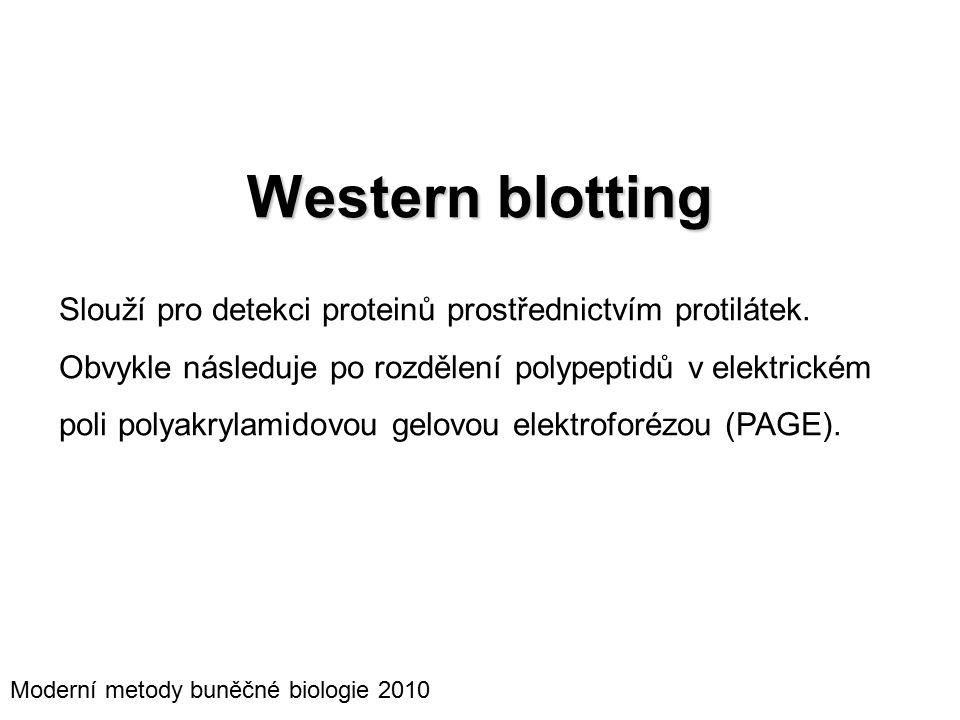 Western blotting Slouží pro detekci proteinů prostřednictvím protilátek.