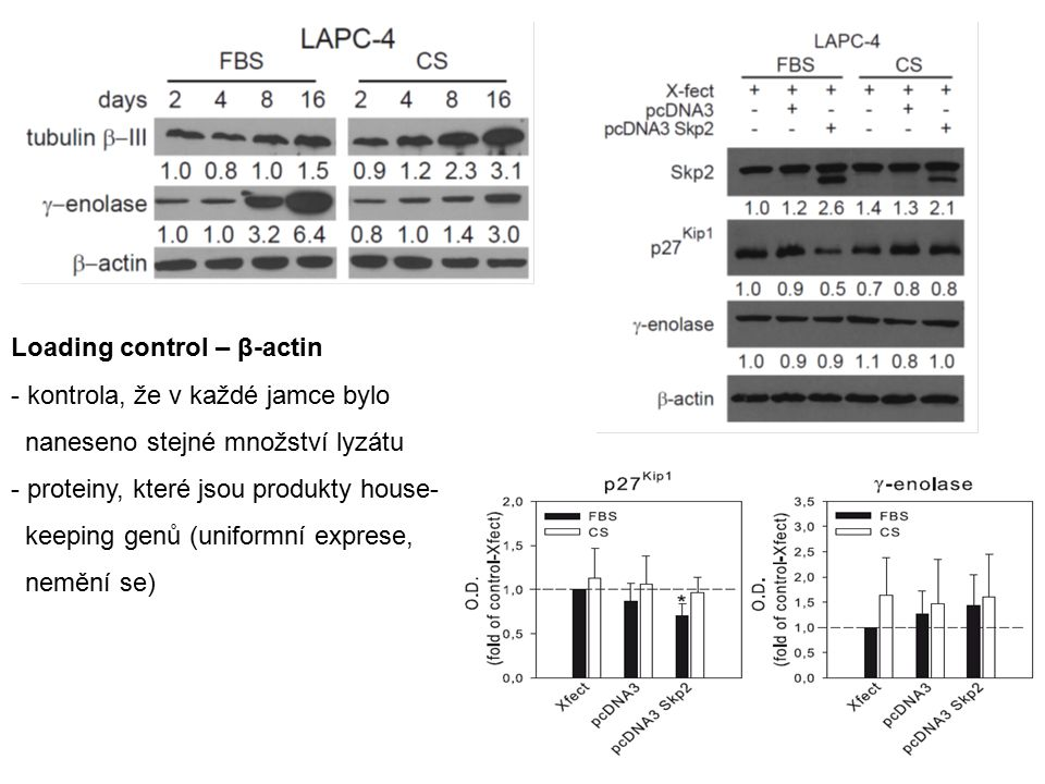 Loading control – β-actin - kontrola, že v každé jamce bylo naneseno stejné množství lyzátu - proteiny, které jsou produkty house- keeping genů (uniformní exprese, nemění se)