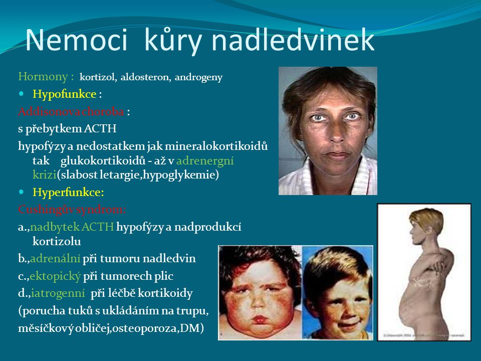 Nemoci kůry nadledvinek Hormony : kortizol, aldosteron, androgeny Hypofunkce : Addisonova choroba : s přebytkem ACTH hypofýzy a nedostatkem jak mineralokortikoidů tak glukokortikoidů - až v adrenergní krizi(slabost letargie,hypoglykemie) Hyperfunkce: Cushingův syndrom: a.,nadbytek ACTH hypofýzy a nadprodukcí kortizolu b.,adrenální při tumoru nadledvin c.,ektopický při tumorech plic d.,iatrogenní při léčbě kortikoidy (porucha tuků s ukládáním na trupu, měsíčkový obličej,osteoporoza,DM)