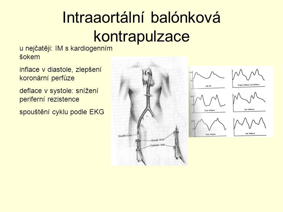 Intraaortální balónková kontrapulzace u nejčatěji: IM s kardiogenním šokem inflace v diastole, zlepšení koronární perfůze deflace v systole: snížení p