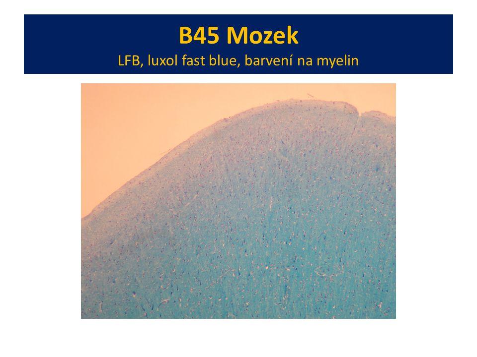 B45 Mozek LFB, luxol fast blue, barvení na myelin