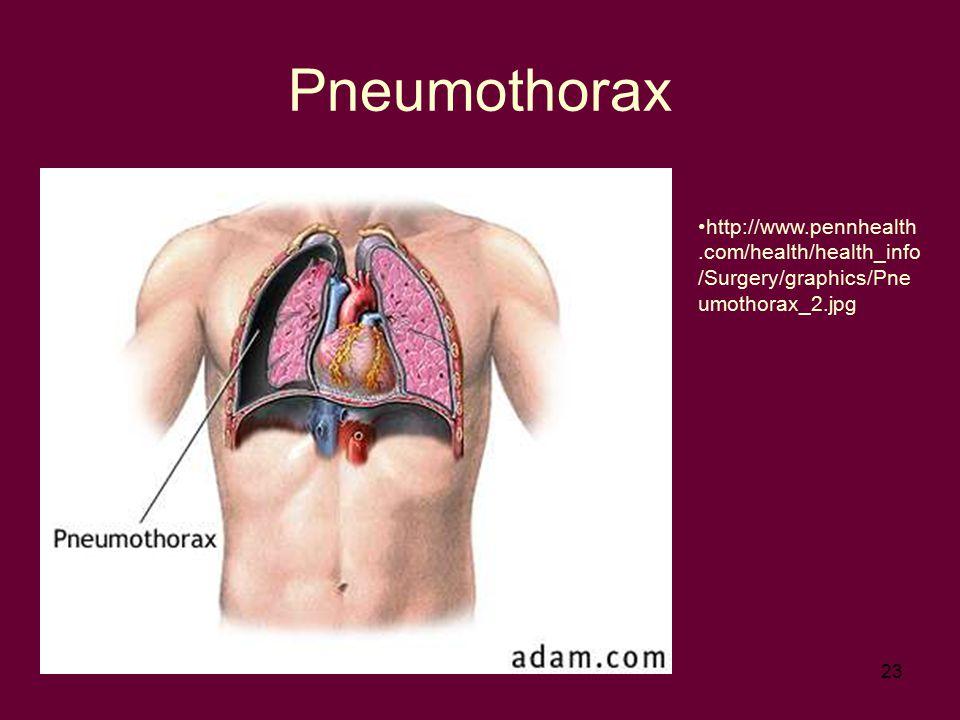 23 Pneumothorax http://www.pennhealth.com/health/health_info /Surgery/graphics/Pne umothorax_2.jpg