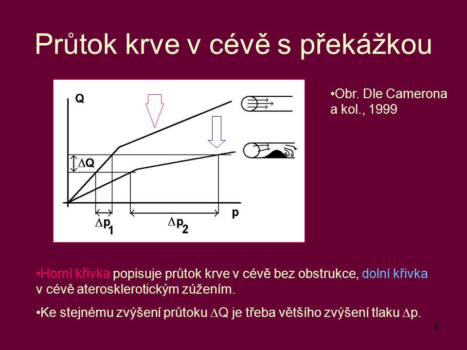 8 Průtok krve v cévě s překážkou Obr. Dle Camerona a kol., 1999 Horní křivka popisuje průtok krve v cévě bez obstrukce, dolní křivka v cévě ateroskler