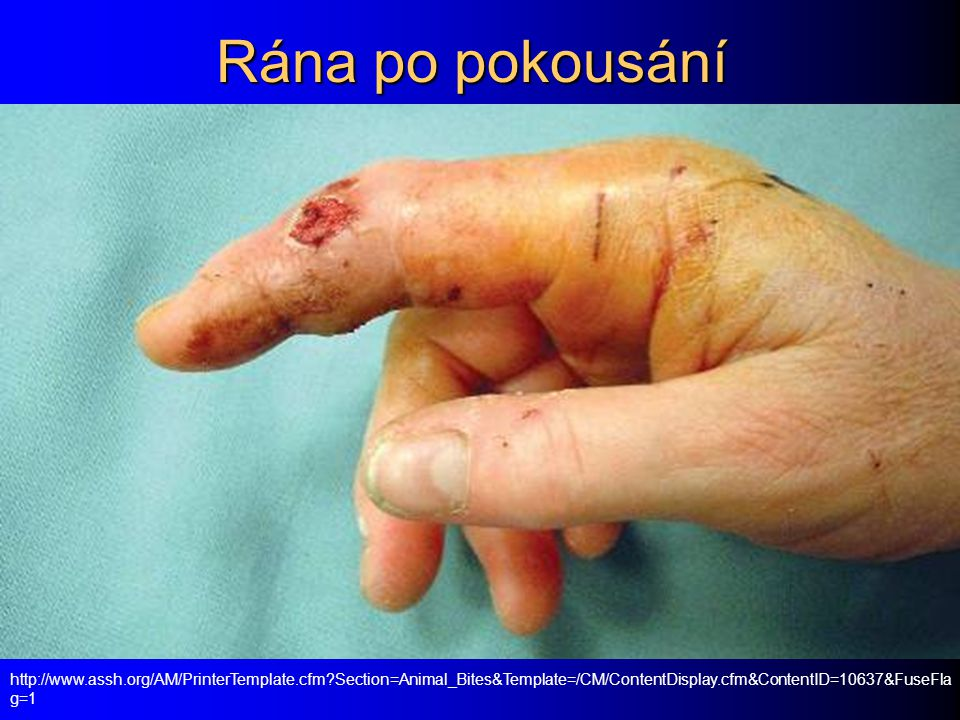 Rána po pokousání http://www.assh.org/AM/PrinterTemplate.cfm?Section=Animal_Bites&Template=/CM/ContentDisplay.cfm&ContentID=10637&FuseFla g=1