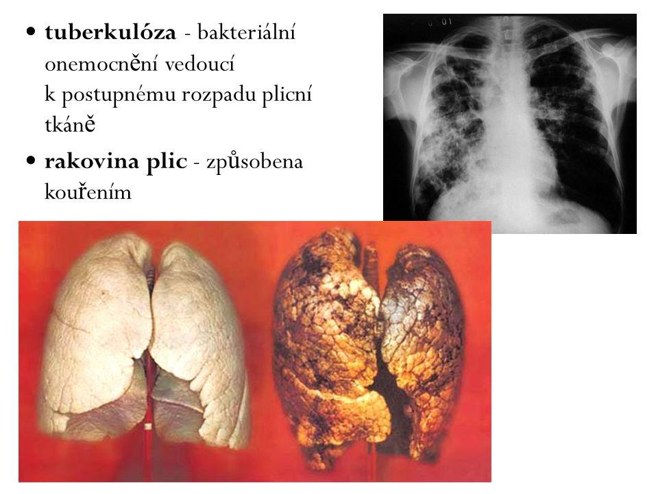 tuberkulóza - bakteriální onemocn ě ní vedoucí k postupnému rozpadu plicní tkán ě rakovina plic - zp ů sobena kou ř ením