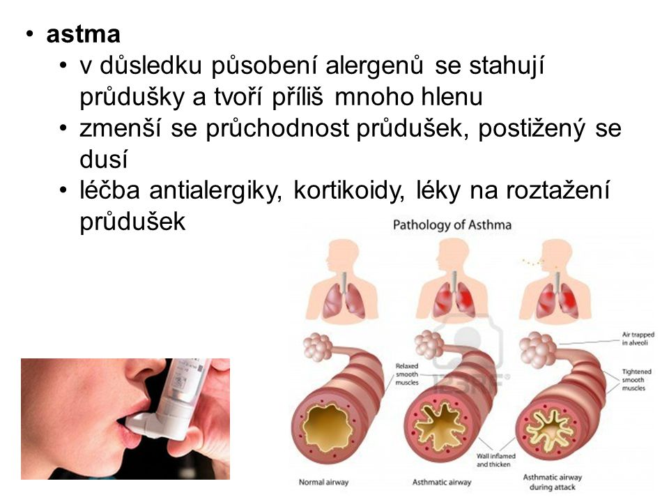 astma v důsledku působení alergenů se stahují průdušky a tvoří příliš mnoho hlenu zmenší se průchodnost průdušek, postižený se dusí léčba antialergiky, kortikoidy, léky na roztažení průdušek