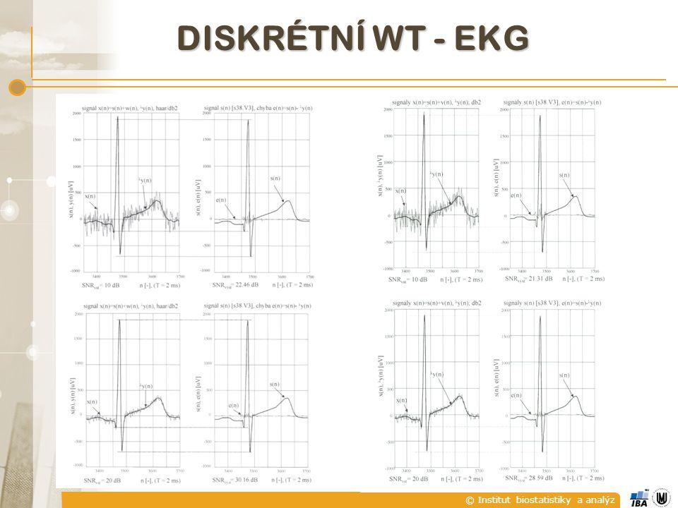 © Institut biostatistiky a analýz DISKRÉTNÍ WT - EKG