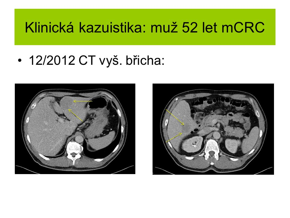Klinická kazuistika: muž 52 let mCRC 12/2012 CT vyš. břicha: