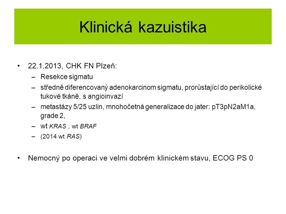 Klinická kazuistika 22.1.2013, CHK FN Plzeň: –Resekce sigmatu –středně diferencovaný adenokarcinom sigmatu, prorůstající do perikolické tukové tkáně,