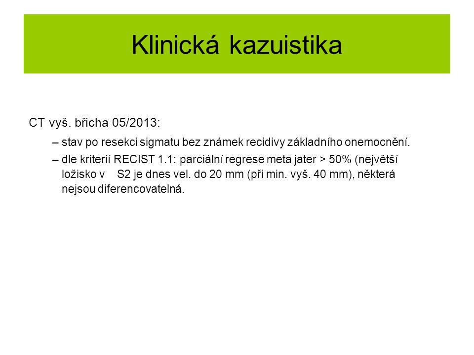 Klinická kazuistika CT vyš. břicha 05/2013: – stav po resekci sigmatu bez známek recidivy základního onemocnění. – dle kriterií RECIST 1.1: parciální