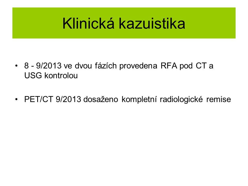 Klinická kazuistika 8 - 9/2013 ve dvou fázích provedena RFA pod CT a USG kontrolou PET/CT 9/2013 dosaženo kompletní radiologické remise