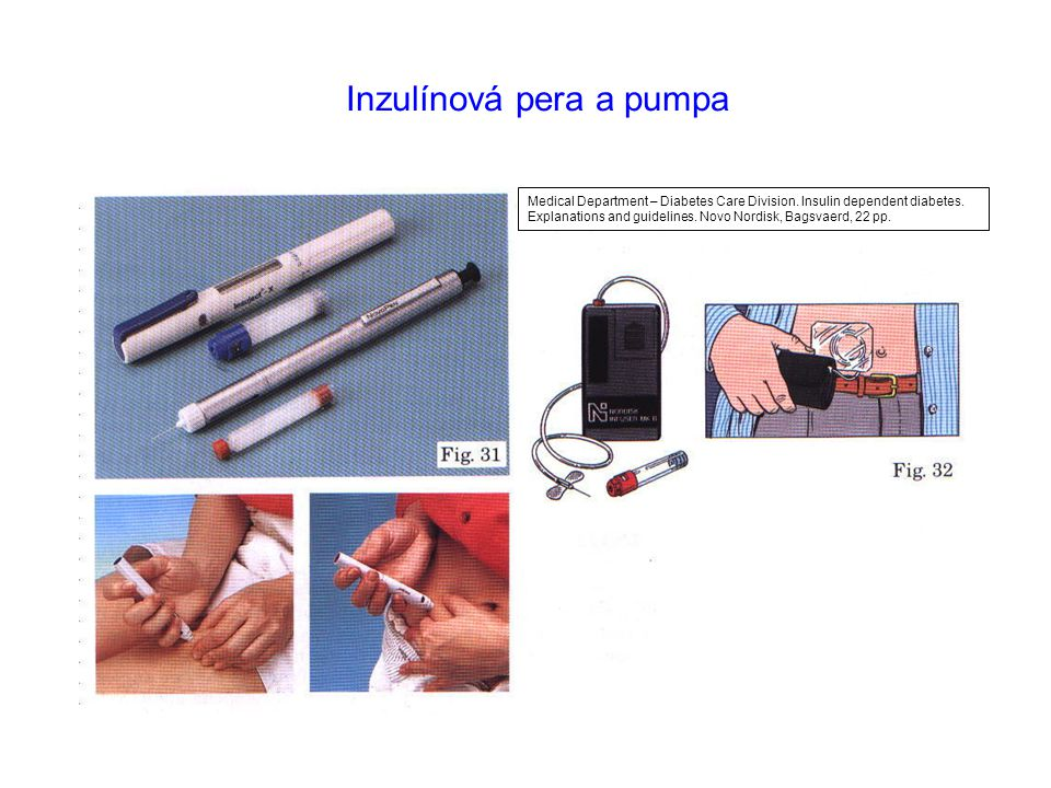Inzulínová pera a pumpa Medical Department – Diabetes Care Division. Insulin dependent diabetes. Explanations and guidelines. Novo Nordisk, Bagsvaerd,