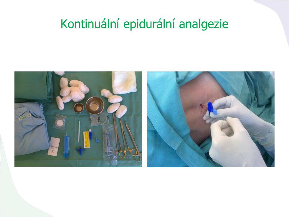 Kontinuální epidurální analgezie