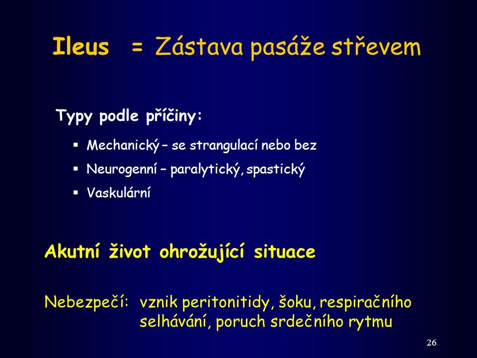 26 Ileus = Zástava pasáže střevem Typy podle příčiny:  Mechanický – se strangulací nebo bez  Neurogenní – paralytický, spastický  Vaskulární Akutní