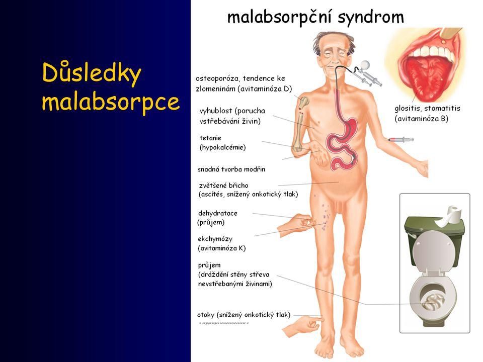 30 Důsledky malabsorpce