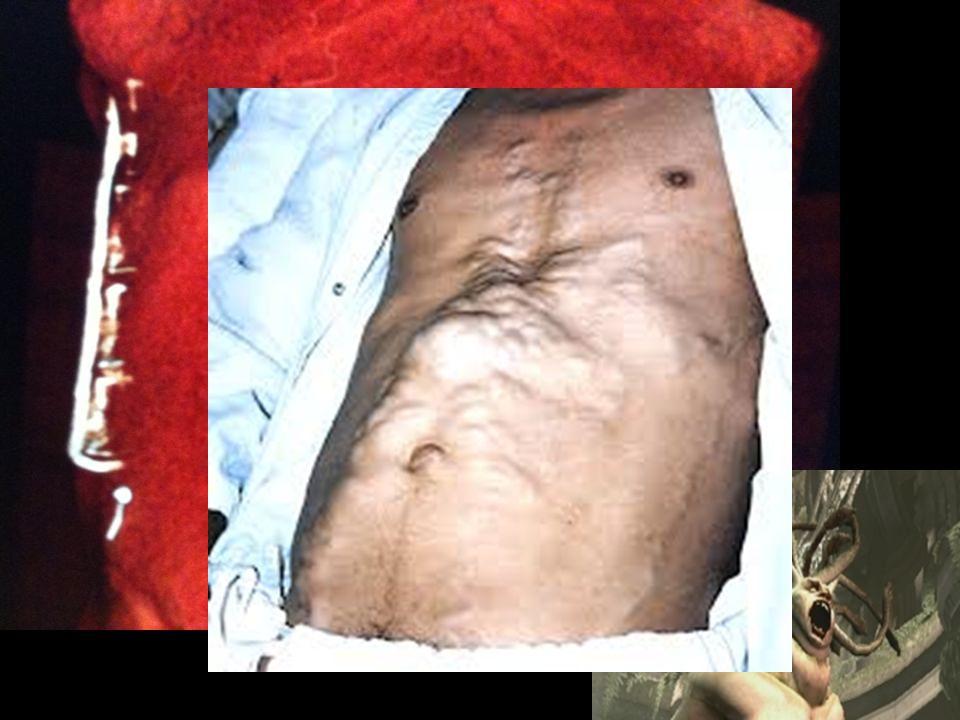 19 1.Poruchy stěny GIT  Ulcerace (hypersekrece HCl, porušená ochrana stěny, urémie, některé infekce)  Zánět (infekční, autoimunitní, neznámá etiologie)  Divertikulóza, polypy
