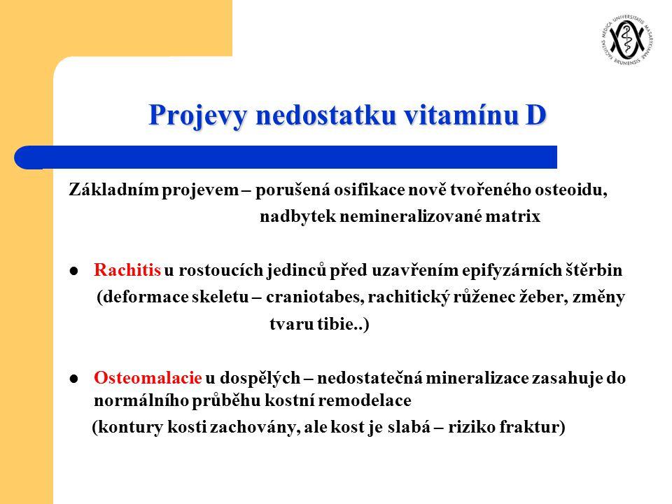 Projevy nedostatku vitamínu D Základním projevem – porušená osifikace nově tvořeného osteoidu, nadbytek nemineralizované matrix Rachitis u rostoucích