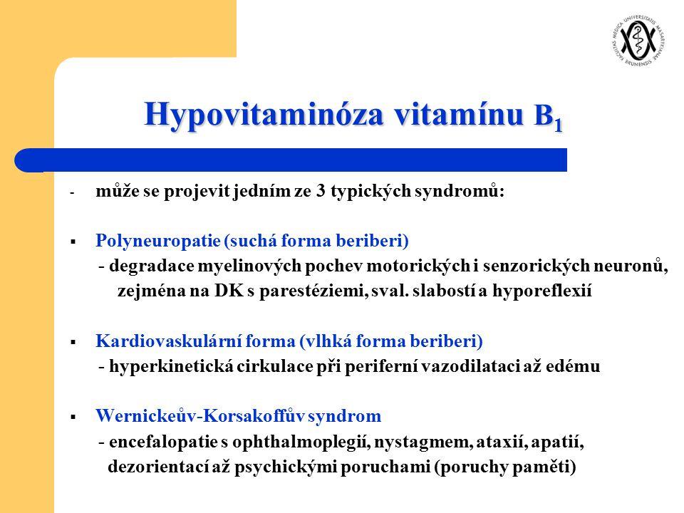Hypovitaminóza vitamínu B 1 - může se projevit jedním ze 3 typických syndromů:  Polyneuropatie (suchá forma beriberi) - degradace myelinových pochev