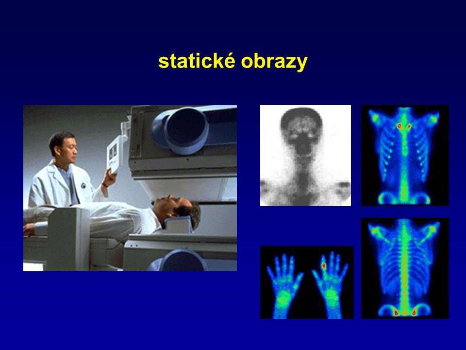 statické obrazy