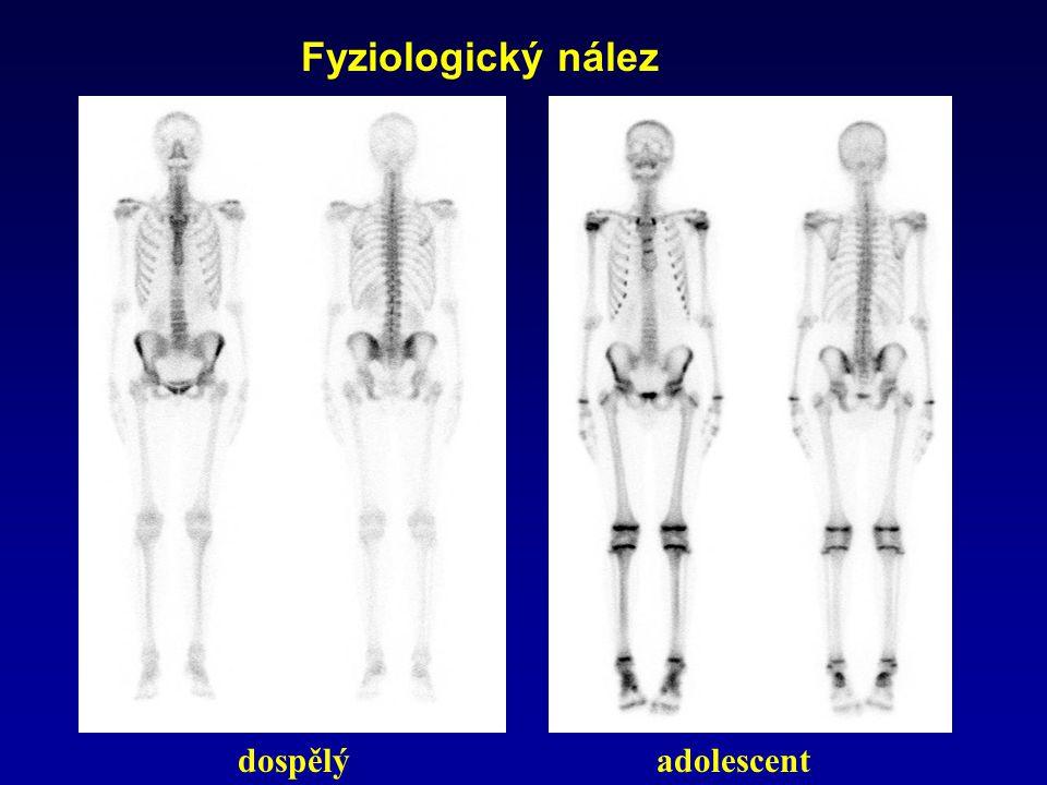 Fyziologický nález dospělýadolescent