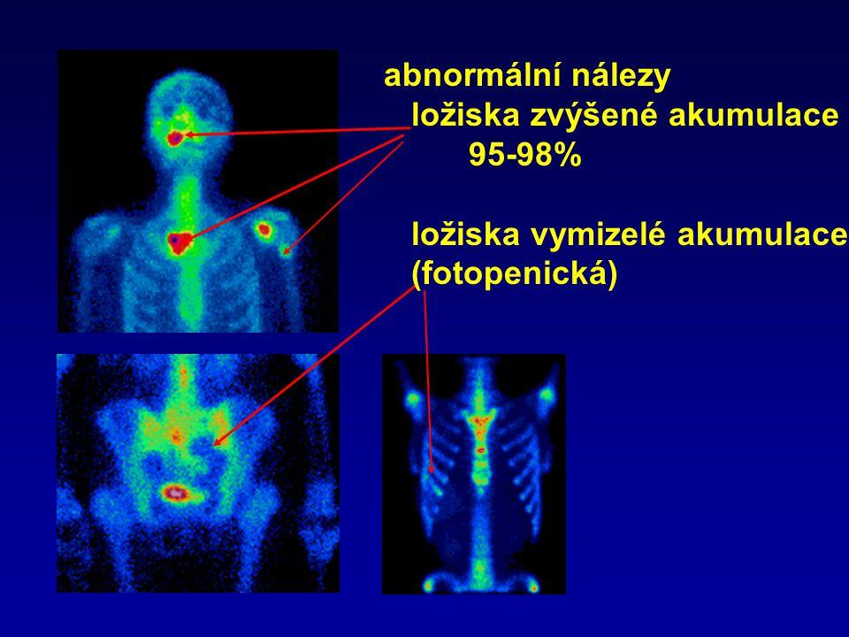 abnormální nálezy ložiska zvýšené akumulace 95-98% ložiska vymizelé akumulace (fotopenická)