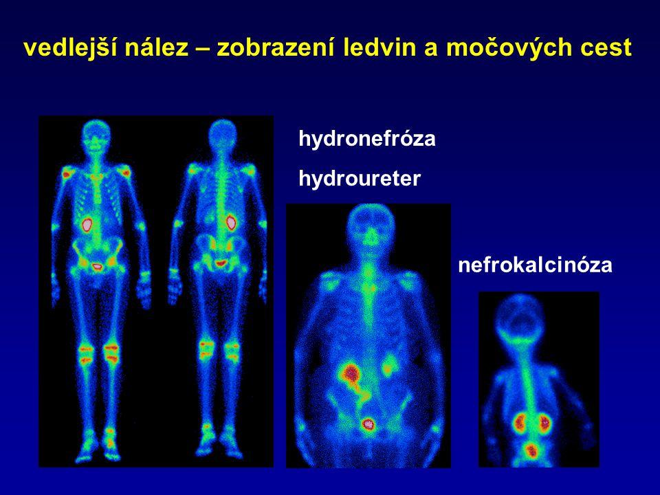 vedlejší nález – zobrazení ledvin a močových cest nefrokalcinóza hydronefróza hydroureter