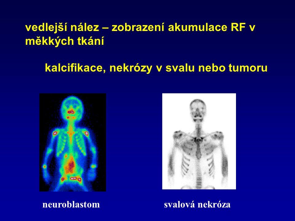 vedlejší nález – zobrazení akumulace RF v měkkých tkání kalcifikace, nekrózy v svalu nebo tumoru neuroblastom svalová nekróza