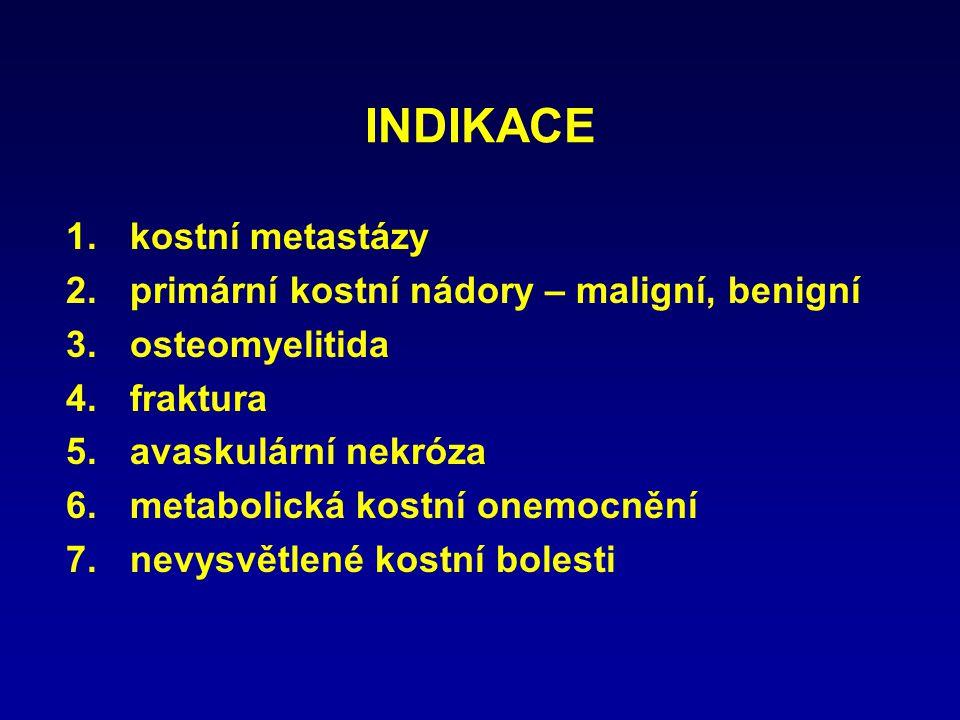 INDIKACE 1.kostní metastázy 2.primární kostní nádory – maligní, benigní 3.osteomyelitida 4.fraktura 5.avaskulární nekróza 6.metabolická kostní onemocn