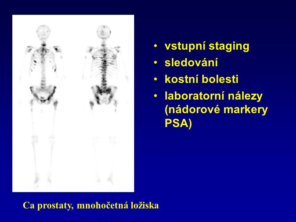 vstupní staging sledování kostní bolesti laboratorní nálezy (nádorové markery PSA) Ca prostaty, mnohočetná ložiska