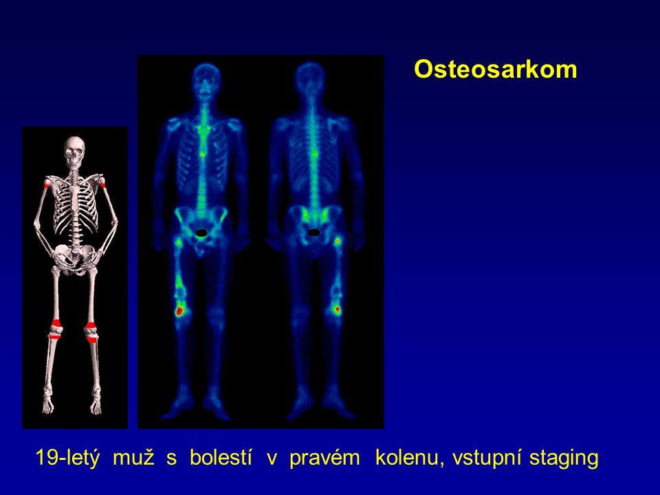 Osteosarkom 19-letý muž s bolestí v pravém kolenu, vstupní staging