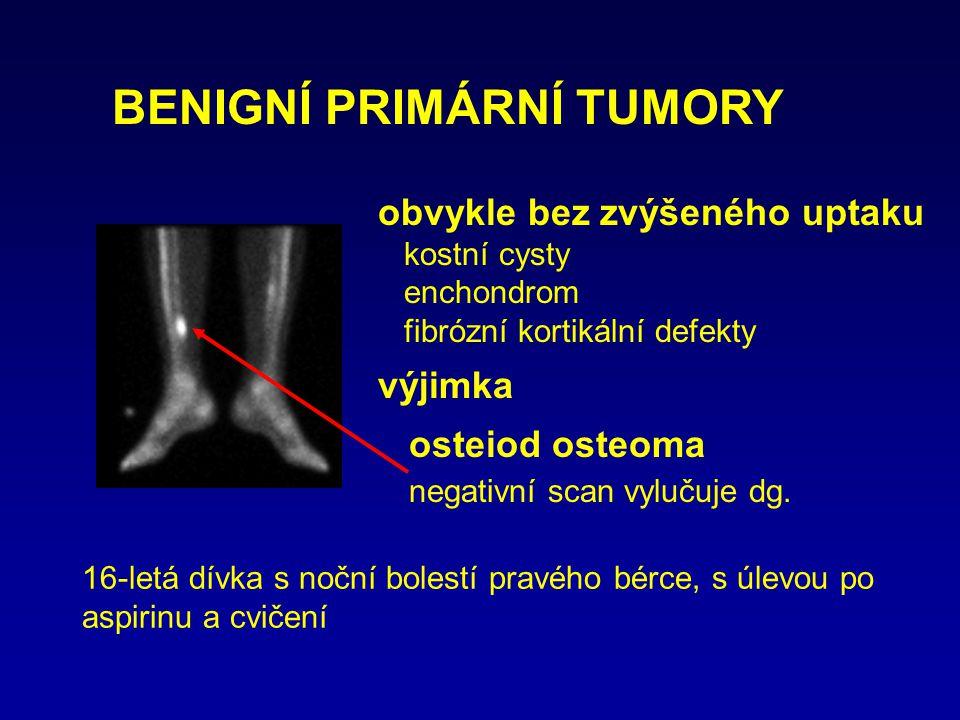 obvykle bez zvýšeného uptaku kostní cysty enchondrom fibrózní kortikální defekty výjimka osteiod osteoma negativní scan vylučuje dg. BENIGNÍ PRIMÁRNÍ