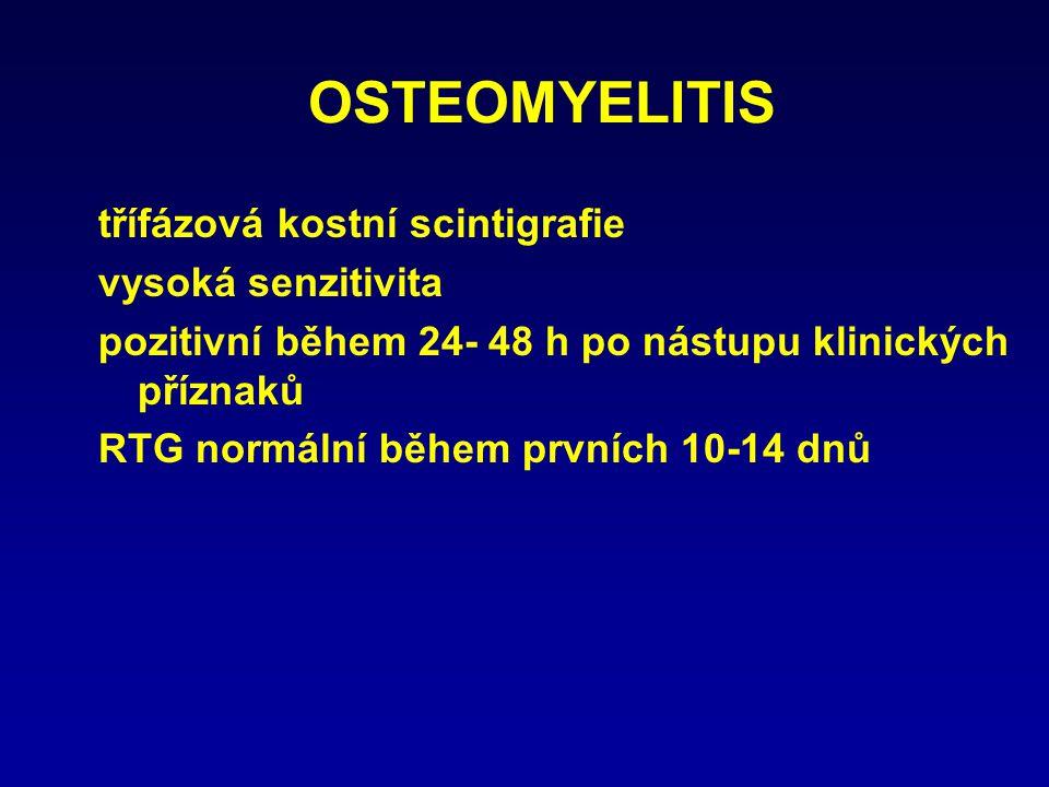 OSTEOMYELITIS třífázová kostní scintigrafie vysoká senzitivita pozitivní během 24- 48 h po nástupu klinických příznaků RTG normální během prvních 10-1