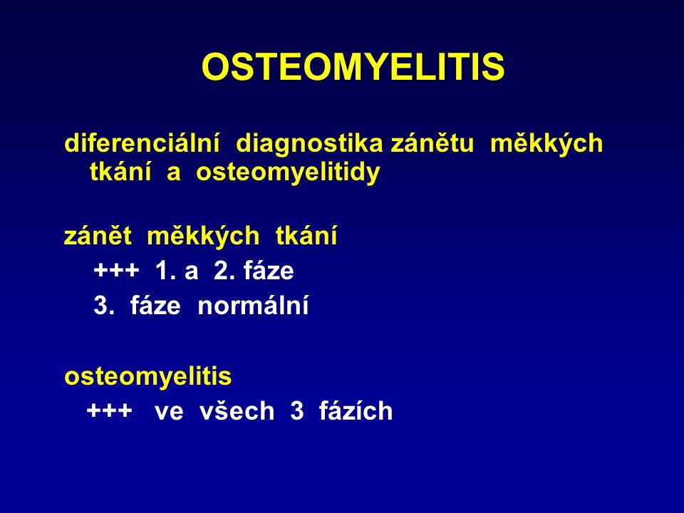 OSTEOMYELITIS diferenciální diagnostika zánětu měkkých tkání a osteomyelitidy zánět měkkých tkání +++ 1. a 2. fáze 3. fáze normální osteomyelitis +++