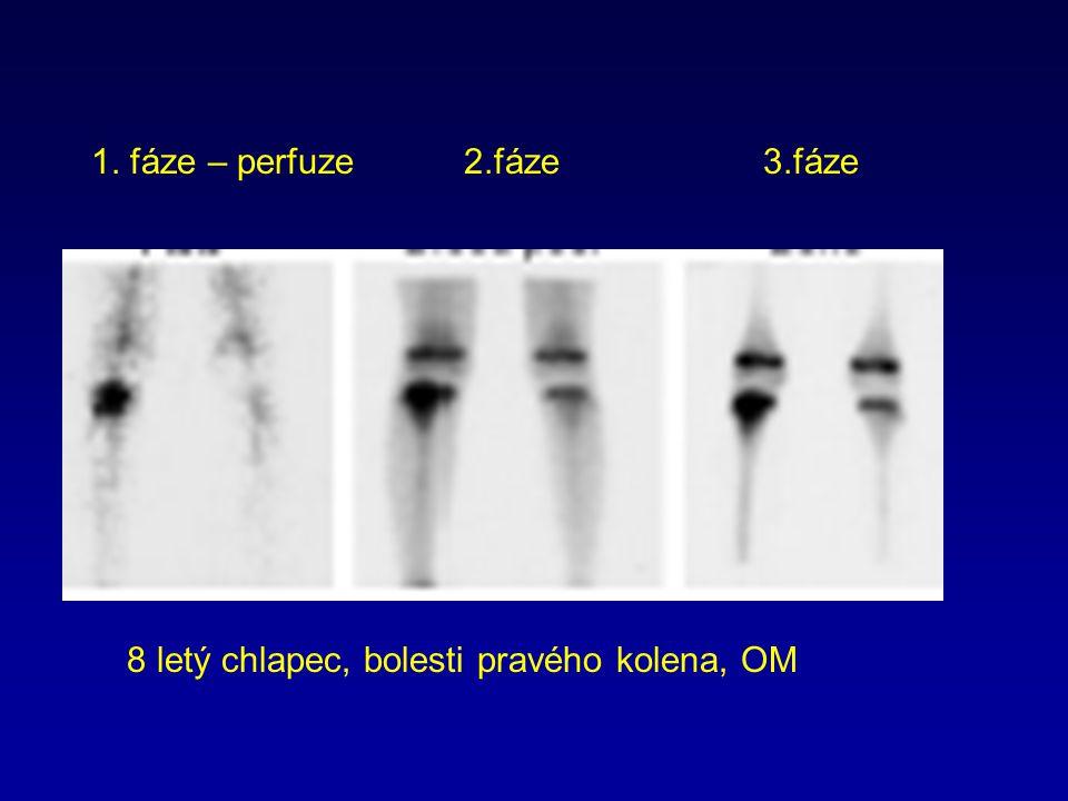 8 letý chlapec, bolesti pravého kolena, OM 1. fáze – perfuze 2.fáze 3.fáze