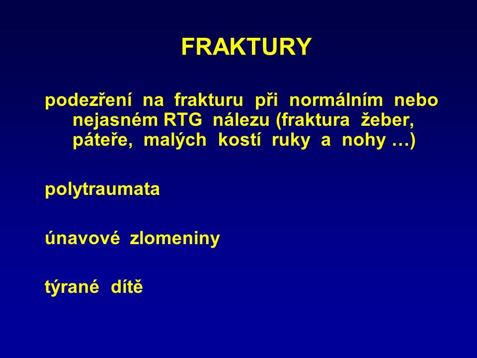 FRAKTURY podezření na frakturu při normálním nebo nejasném RTG nálezu (fraktura žeber, páteře, malých kostí ruky a nohy …) polytraumata únavové zlomen