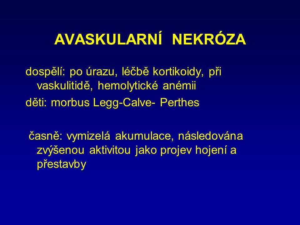 AVASKULARNÍ NEKRÓZA dospělí: po úrazu, léčbě kortikoidy, při vaskulitidě, hemolytické anémii děti: morbus Legg-Calve- Perthes časně: vymizelá akumulac