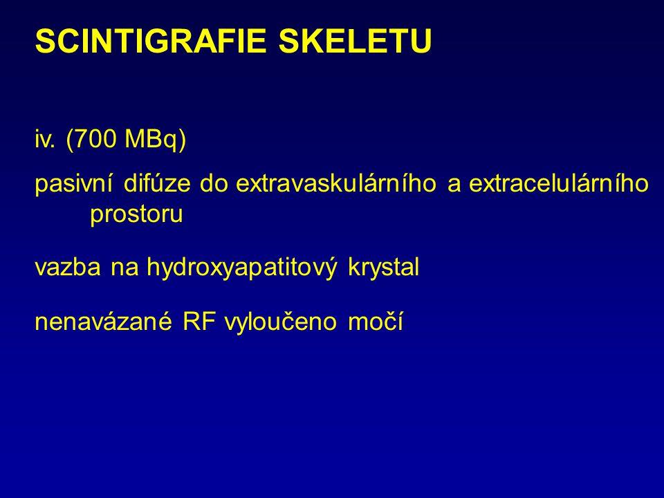 SCINTIGRAFIE SKELETU iv. (700 MBq) pasivní difúze do extravaskulárního a extracelulárního prostoru vazba na hydroxyapatitový krystal nenavázané RF vyl