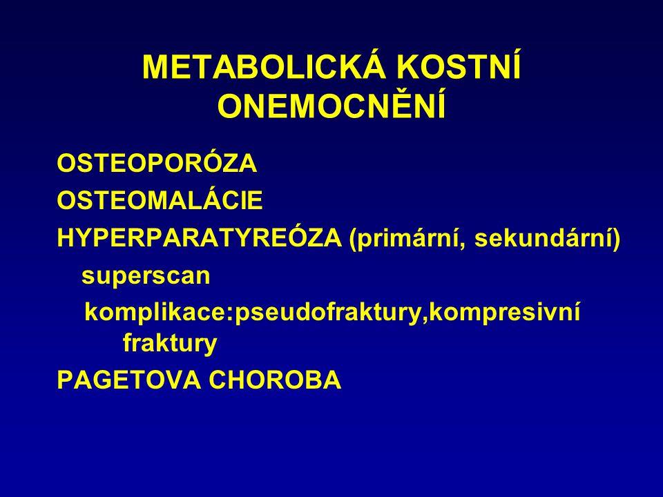METABOLICKÁ KOSTNÍ ONEMOCNĚNÍ OSTEOPORÓZA OSTEOMALÁCIE HYPERPARATYREÓZA (primární, sekundární) superscan komplikace:pseudofraktury,kompresivní fraktur