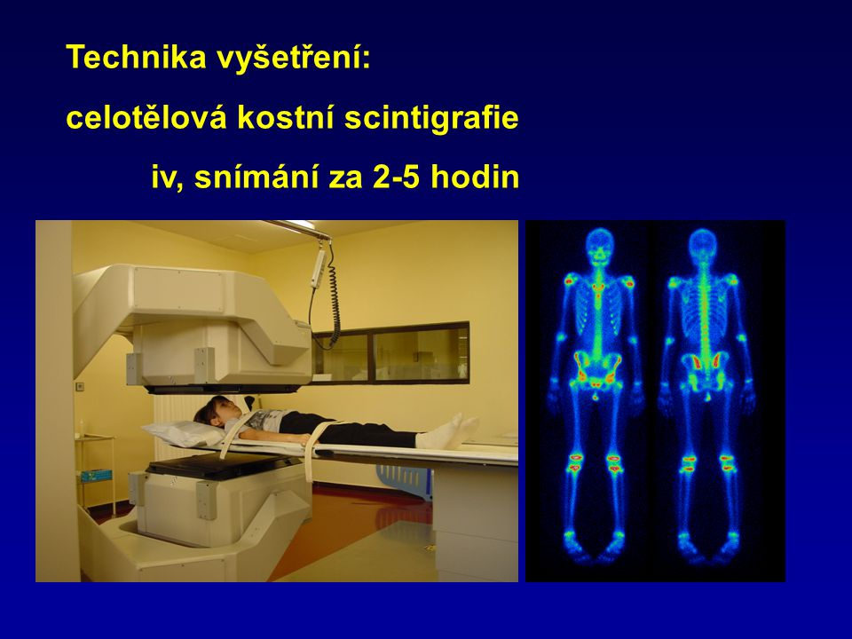 Technika vyšetření: celotělová kostní scintigrafie iv, snímání za 2-5 hodin