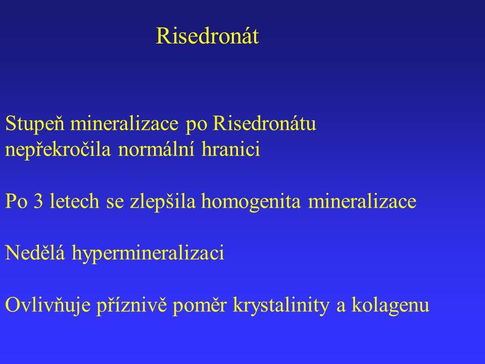 Risedronát Stupeň mineralizace po Risedronátu nepřekročila normální hranici Po 3 letech se zlepšila homogenita mineralizace Nedělá hypermineralizaci O