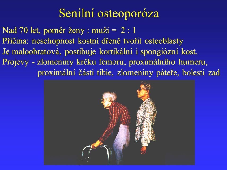 Nad 70 let, poměr ženy : muži = 2 : 1 Příčina: neschopnost kostní dřeně tvořit osteoblasty Je maloobratová, postihuje kortikální i spongiózní kost. Pr