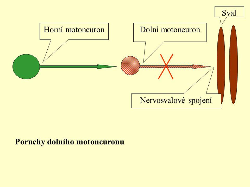 Horní motoneuronDolní motoneuron Sval Nervosvalové spojení Poruchy dolního motoneuronu