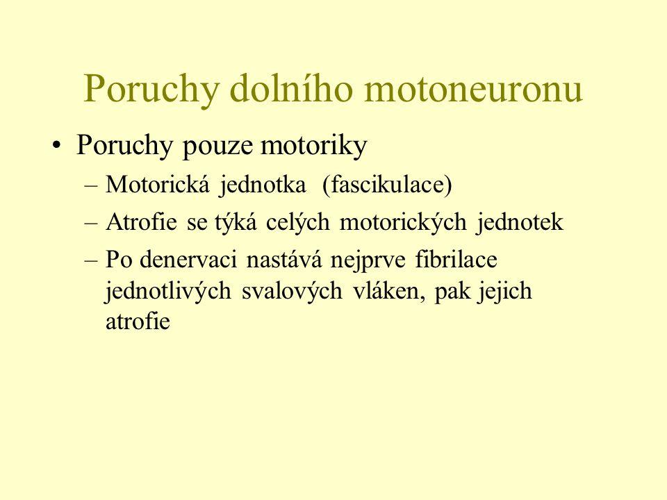 Poruchy dolního motoneuronu Poruchy pouze motoriky –Motorická jednotka (fascikulace) –Atrofie se týká celých motorických jednotek –Po denervaci nastáv