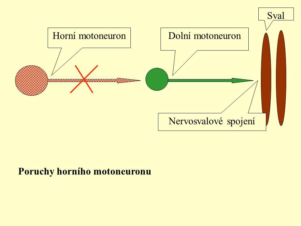 Horní motoneuronDolní motoneuron Sval Nervosvalové spojení Poruchy horního motoneuronu