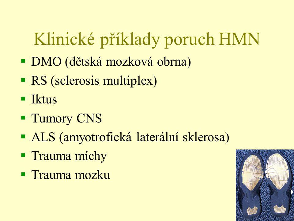 Klinické příklady poruch HMN  DMO (dětská mozková obrna)  RS (sclerosis multiplex)  Iktus  Tumory CNS  ALS (amyotrofická laterální sklerosa)  Tr