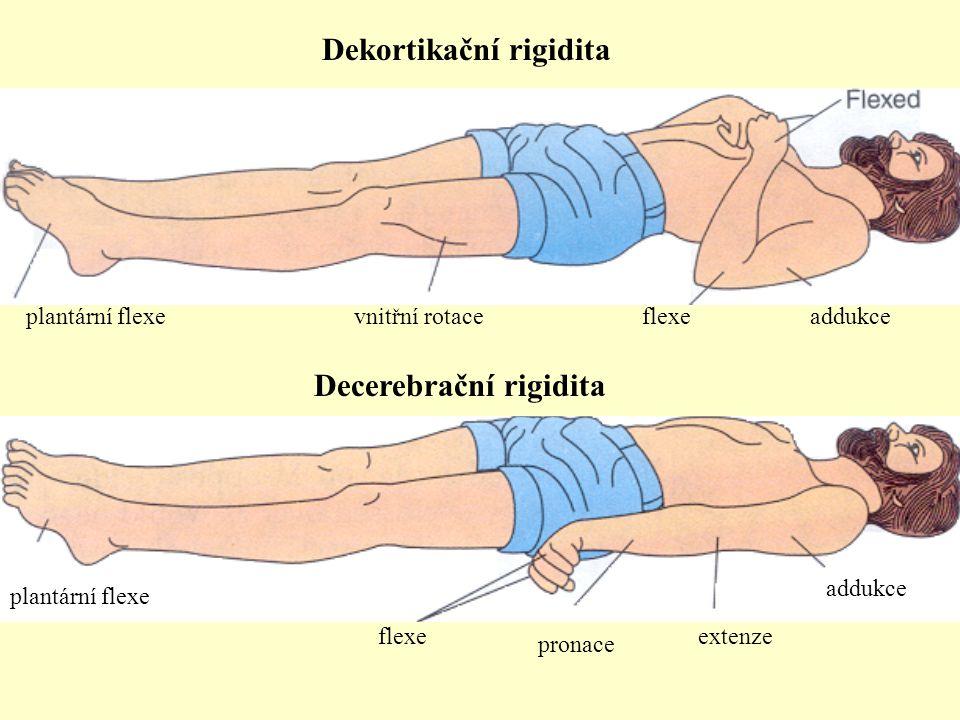 addukceflexevnitřní rotaceplantární flexe pronace extenze addukce flexe plantární flexe Dekortikační rigidita Decerebrační rigidita